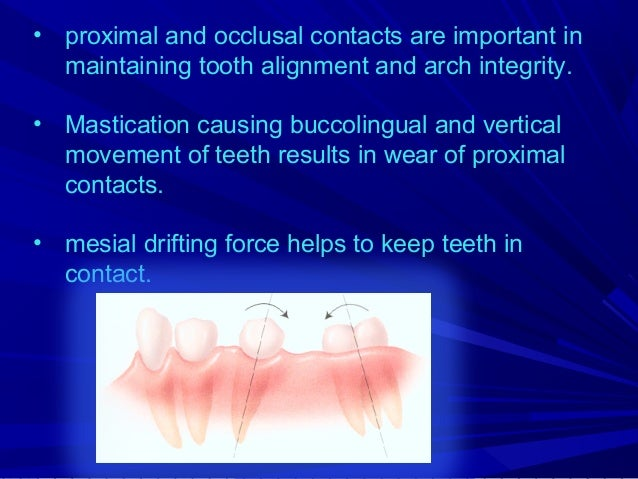 Centric cusps Buccal cusps of the mandibular posterior teeth and lingual cusp of the maxillary posterior are the centric o...