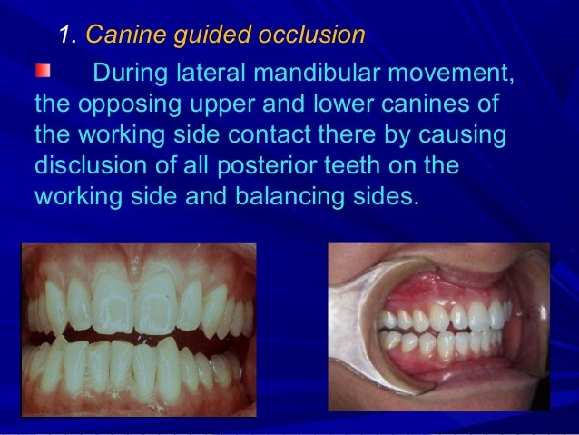 2. Grouped lateral occlusion – In addition to canine guidance certain other posterior teeth on the working side also conta...