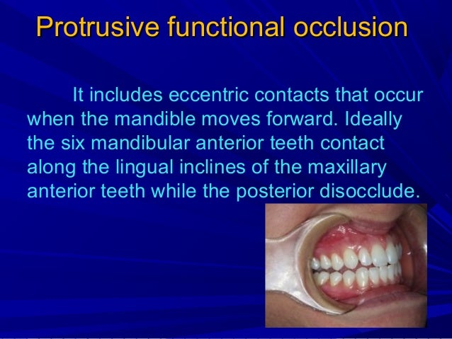 Non-functional occlusion They are tooth contacts that occur in the segment away from which the mandible moves. For example...