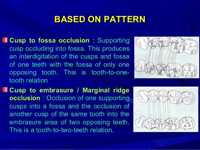 SIX KEYS TO NORMAL OCCLUSION  1. 2. 3. 4.  LAWRENCE F.ANDREWS(1972) - collection of 120 models of teeth with naturally exc...