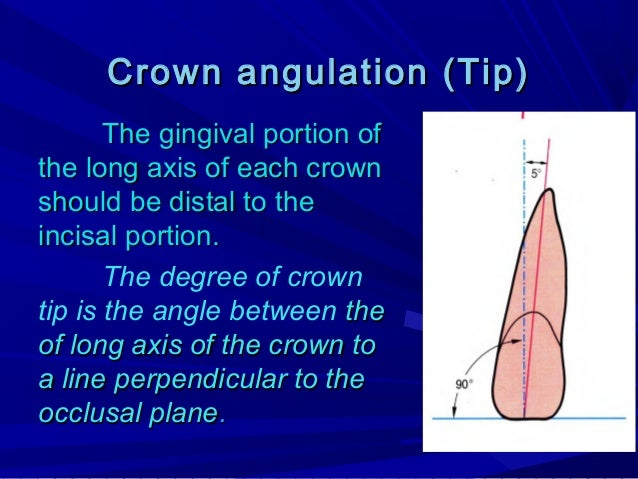 A 'plus' reading when the gingival portion of the long axis of crown is distal to the incisal portion. A 'minus' reading i...