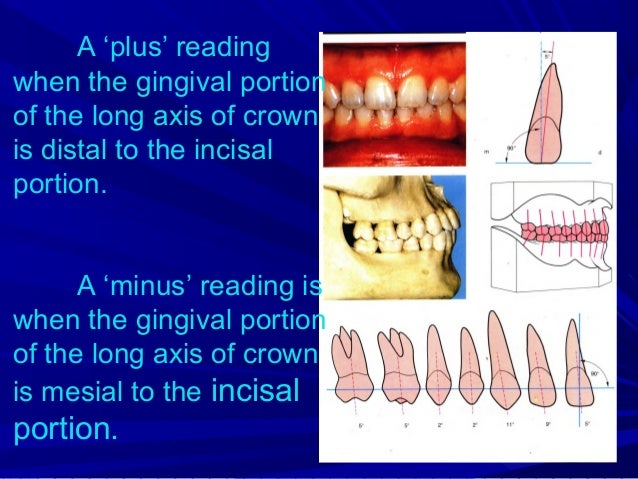 Crown inclination(Torque) Refers to the buccolingual inclination of the long axis of crown, not to the long axis of entire...