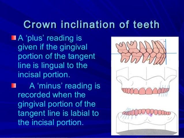 Most maxillary incisors have a positive inclination; mandibular incisors have a slightly negative inclination. All posteri...