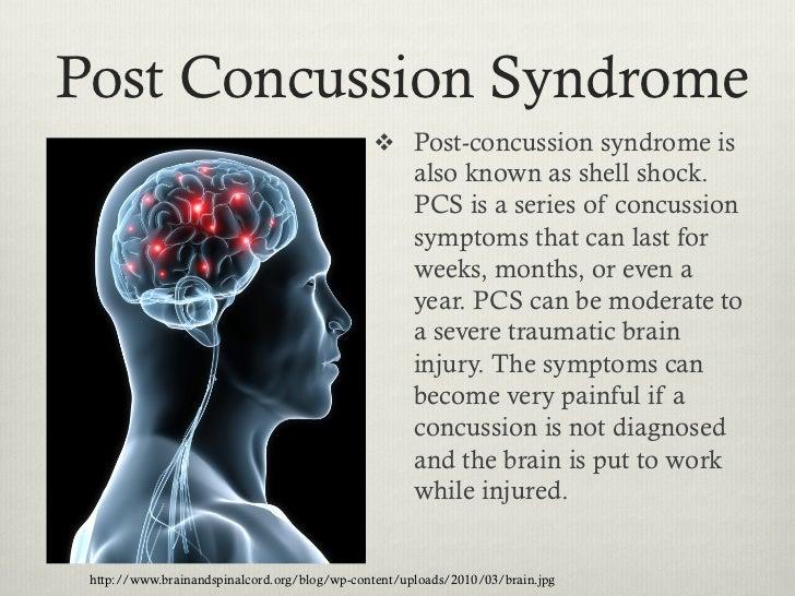concussions, Skeleton