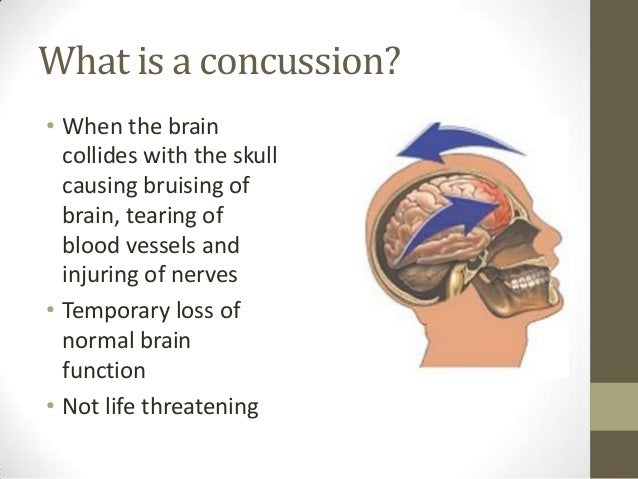 an introduction to a concussion a bruise to the brain Concussion information concussion is a term describing an injury to the brain popular terms used to describe a concussion include a bruise to the brain, a ding, seeing stars, being dazed or confused, having your bell rung, being knocked out, being shaken up, having ants crawling in your head, a bump, blow or jolt to the head or simply a head injury.