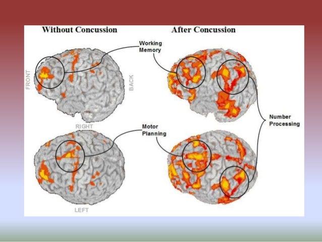 Auditory Neuroscience: Upcoming Talks