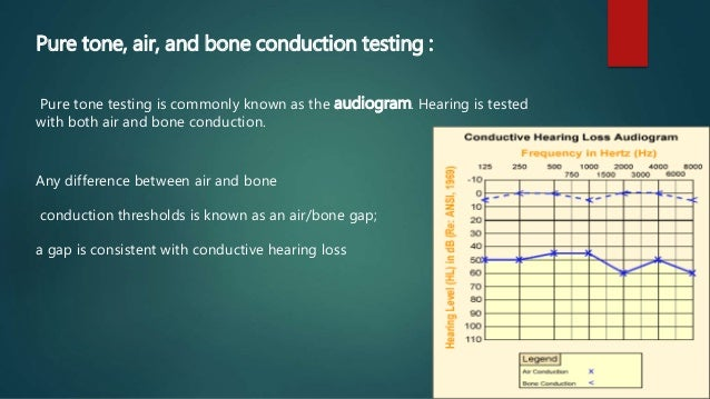 16b6c609902c ... air bone gap  a gap is consistent with conductive hearing loss  20.