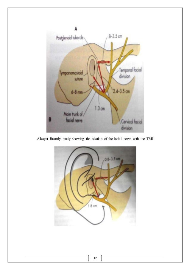 12 Alkayat-Bramly study showing the relation of the facial nerve with the TMJ