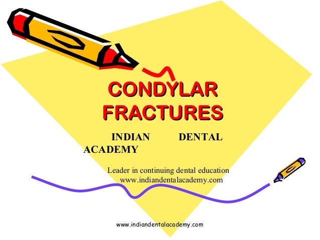 CONDYLAR FRACTURES INDIAN ACADEMY  DENTAL  Leader in continuing dental education www.indiandentalacademy.com  www.indiande...