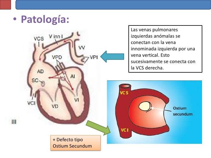 Conexión Venosa Pulmonar Anómala
