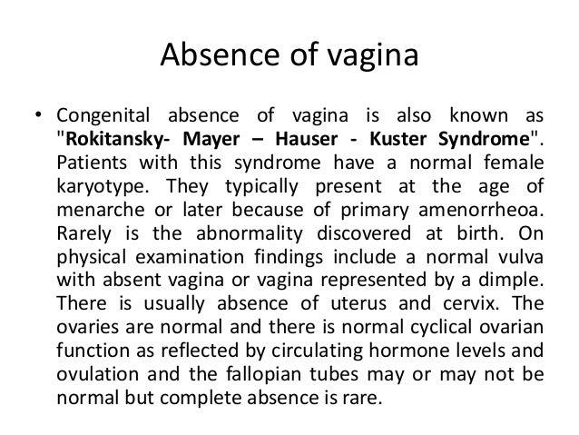 Congenital absence of vagina