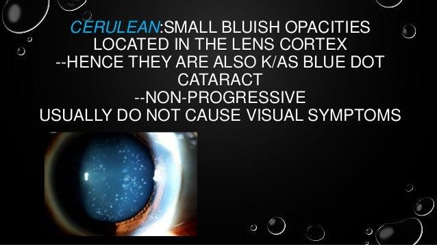 Congenital Cataract Its Management