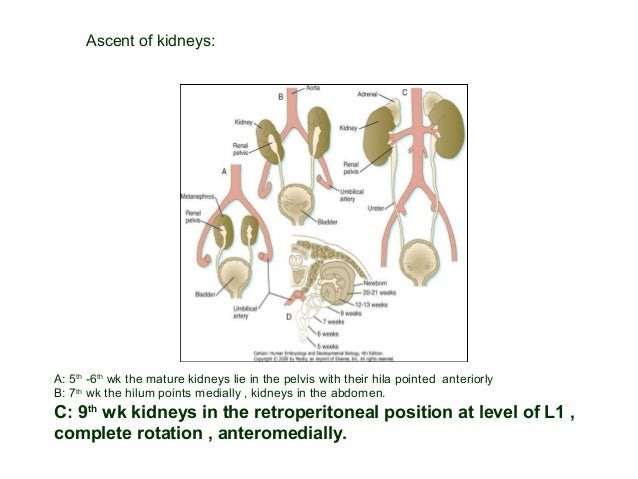 B- Renal Hypoplasia : Small size, non dysplastic, less than normal # of calyces & nephrons. Everything is the same, but sm...