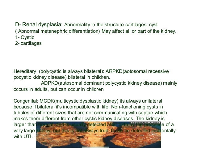 III-Abnormalities of the collecting system: A- Duplex kidney : 1% , Familial, more in girls , 70% unilateral. -Two pelvica...