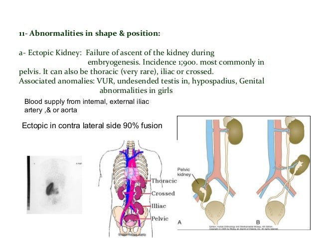 Ureteropelvic junction obstruction ( UPJ): Detected antenatal, most frequent cause of hydronephrosis More common in Left s...