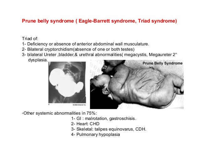 Congenital anomaly of urinary system.