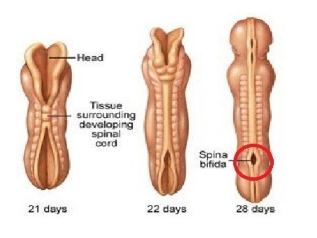 Congenital Diseases of the Spine