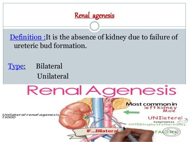 congenital anomalies of kidney and urinary tract pdf