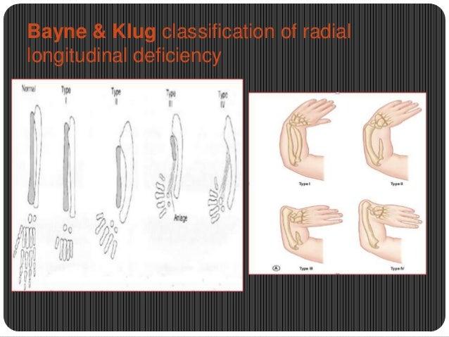 Bayne & Klug classification of radial longitudinal deficiency
