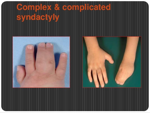 Complex & complicated syndactyly