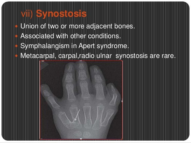 vii) Synostosis  Union of two or more adjacent bones.  Associated with other conditions.  Symphalangism in Apert syndro...