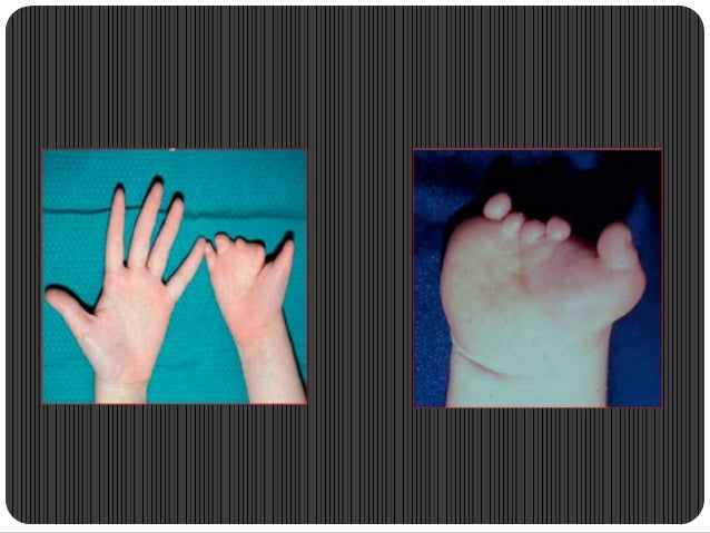 Triphalangeal thumb  AD  Extra phalanx of variable size, variable  shape(triangular/trapezoid/rectangular) normal appear...