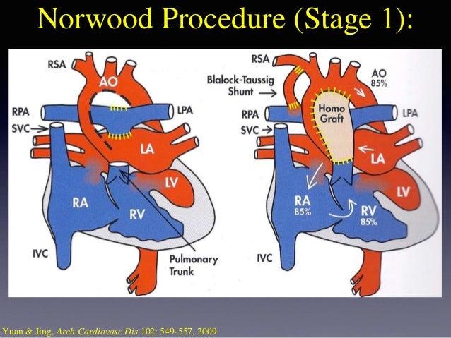 congenital heart defects 7 638