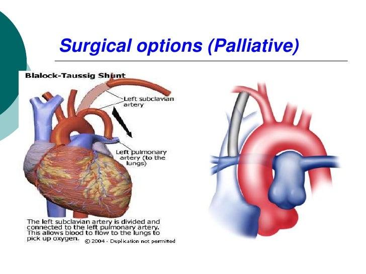 Surgical options (Palliative)