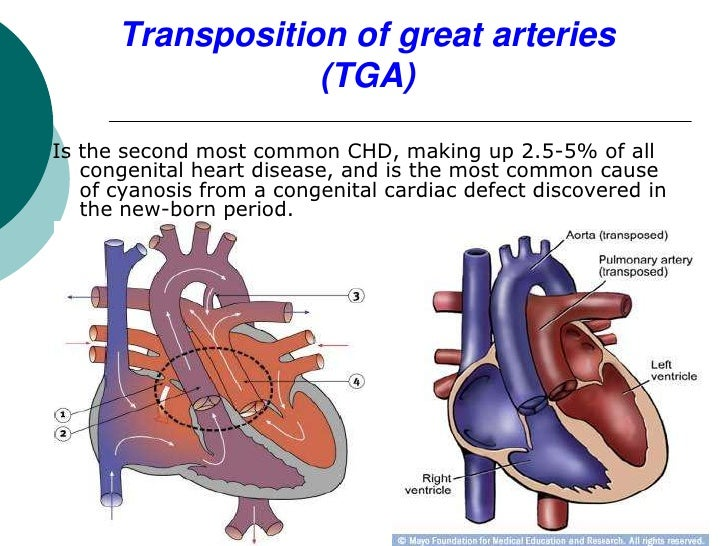 Transposition of great arteries                  (TGA)Is the second most common CHD, making up 2.5-5% of all   congenital ...