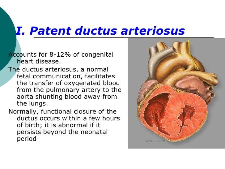 I. Patent ductus arteriosusAccounts for 8-12% of congenital  heart disease.The ductus arteriosus, a normal  fetal communic...