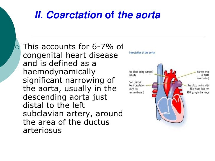 II. Coarctation of the aorta   This accounts for 6-7% of    congenital heart disease    and is defined as a    haemodynam...