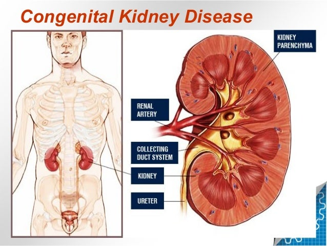 Congenital kidney disease in radiology kazan state medical university congenital kidney disease in ct mri radiology project 2 ccuart Choice Image