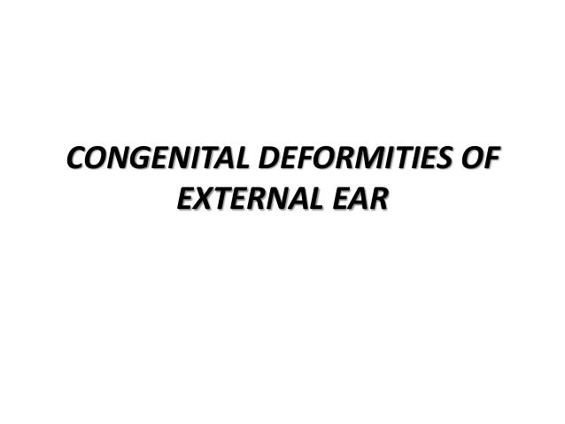 PRE-AURICULAR TAGS • Very common • Involves only skin but usually contains a long tail of cartilage extending into the che...