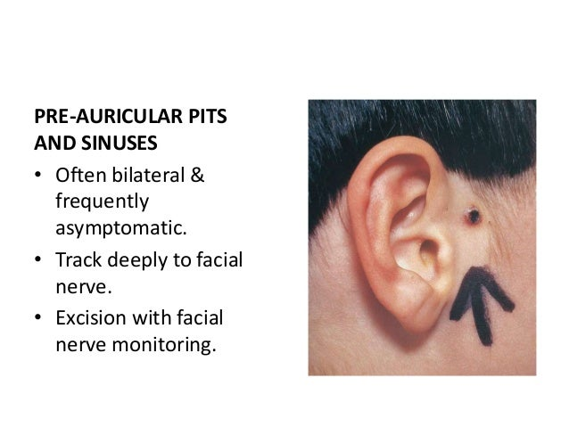 ABNORMAL FOLDS OF PINNA • Common • Lop ear - Upper pole of the ear flops over • 'Mustarde' type suture used to create U-sh...
