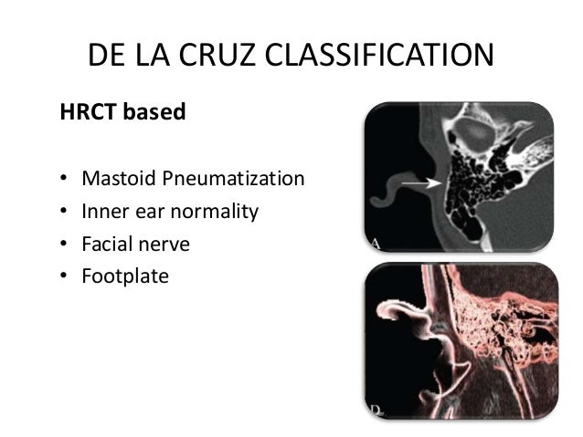 DE LA CRUZ CLASSIFICATION Major Malformations • Poor pneumatization • Abnormal or absent oval window/footplate • Abnormal ...