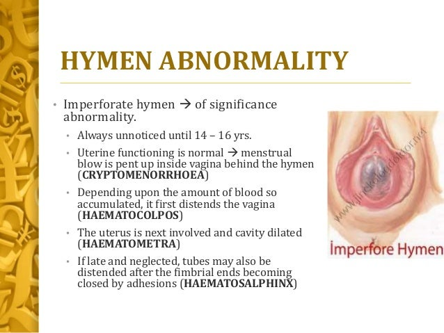 Congenital malformations of female genital tract hymen abnormality ccuart Image collections
