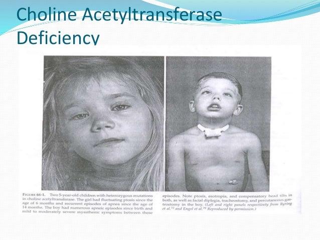 Congenital Facial Diplegia
