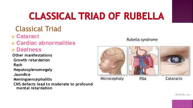 the symptoms of congenital rubella syndrome Looking for online definition of rubella, congenital syndrome in the medical dictionary  although the symptoms of rubella pass quickly for the mother,.