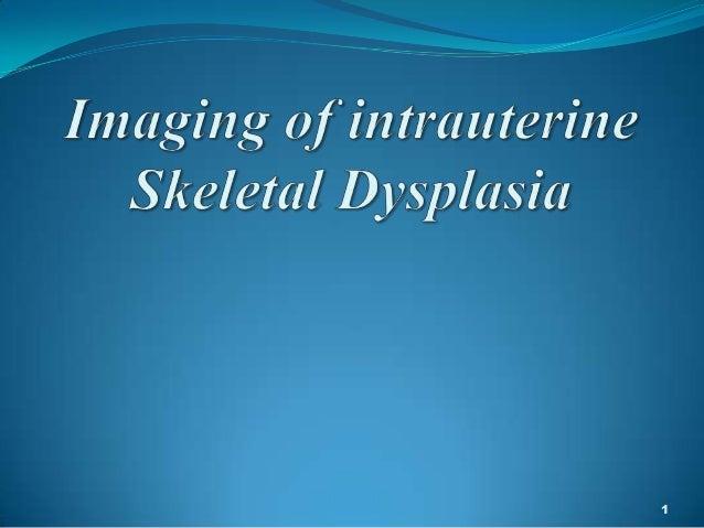 imaging in intrauterine skeletal dysplasia  Slide 1