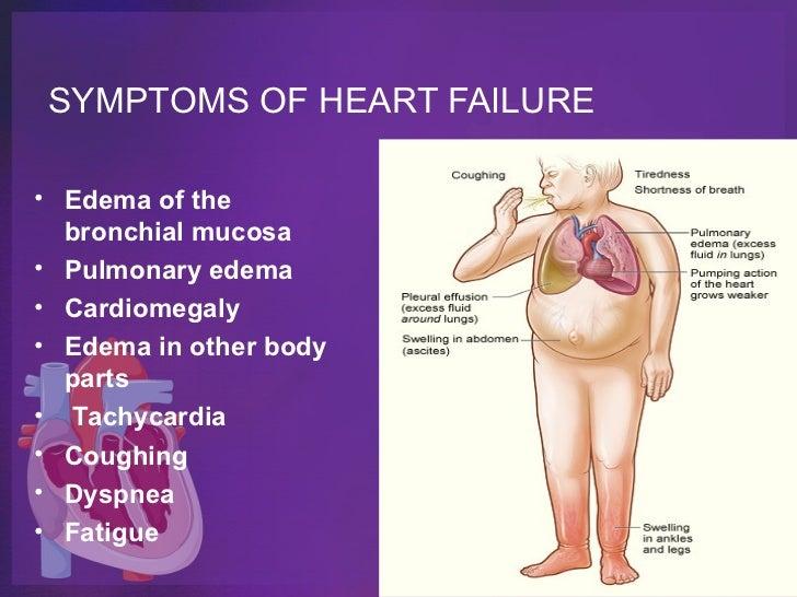 Symptoms of adult myoclonic seizures