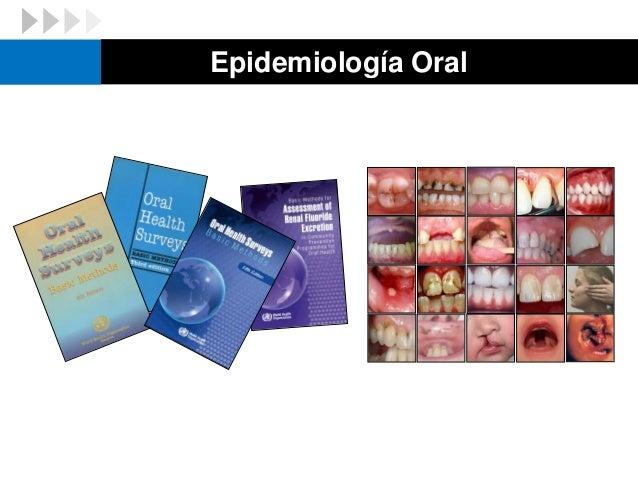 CIE-OE Clasificación Internacional de Enfermedades Aplicada a Odontología y Estomatología CIE-10 Clasificación Estadística...