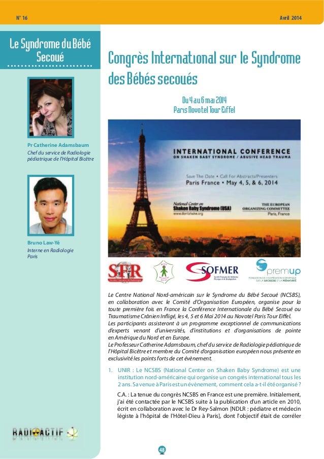 48 N° 16 Avril 2014 Congrès International sur le Syndrome desBébéssecoués Du4au6mai2014 ParisNovotelTourEiffel Le Centre N...
