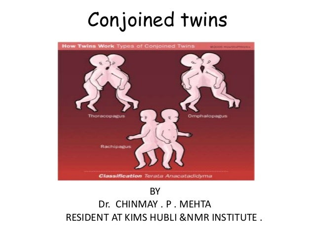 Conjoined twins  BY Dr. CHINMAY . P . MEHTA RESIDENT AT KIMS HUBLI &NMR INSTITUTE .