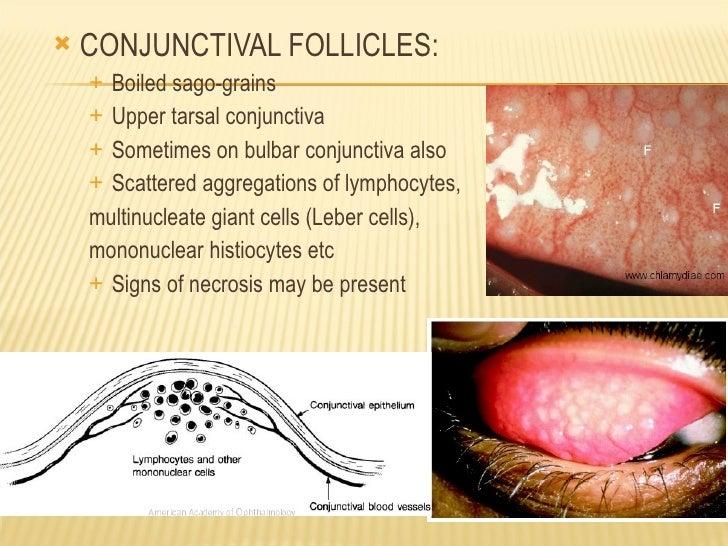 Follicles Vs Papillae ...