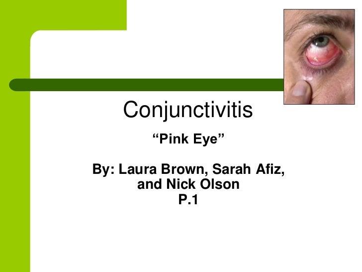"Conjunctivitis        ""Pink Eye""By: Laura Brown, Sarah Afiz,      and Nick Olson            P.1"