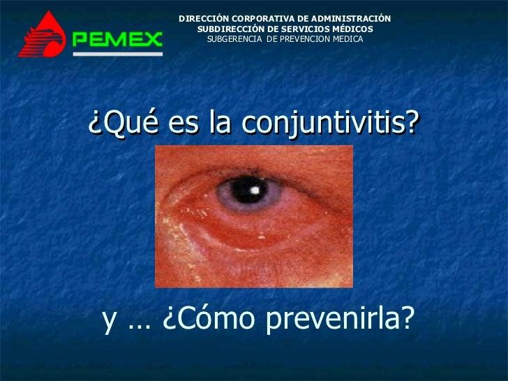 ¿Qué es la conjuntivitis? DIRECCIÓN CORPORATIVA DE ADMINISTRACIÓN SUBDIRECCIÓN DE SERVICIOS MÉDICOS SUBGERENCIA  DE PREVEN...