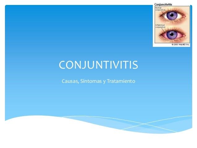CONJUNTIVITISCausas, Síntomas y Tratamiento