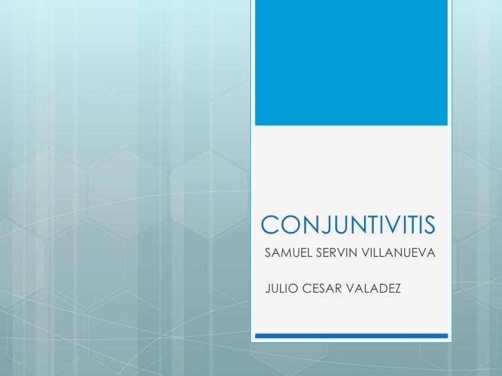 CONJUNTIVITISSAMUEL SERVIN VILLANUEVAJULIO CESAR VALADEZ