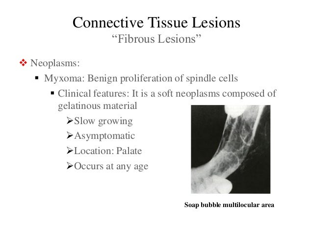 malignancy of connective tissue Connective tissue lesions