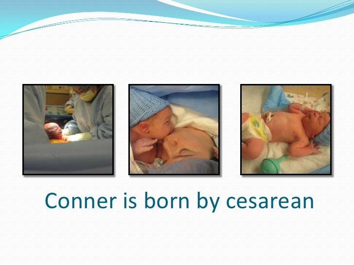 Conner is born by cesarean<br />